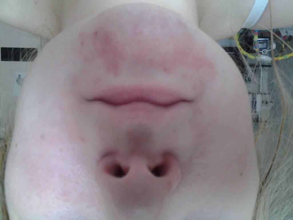 Сыпь на теле у взрослого. что это может быть, если чешется, мелкая в виде прыщиков, крупная с покраснениями. фото и как лечить