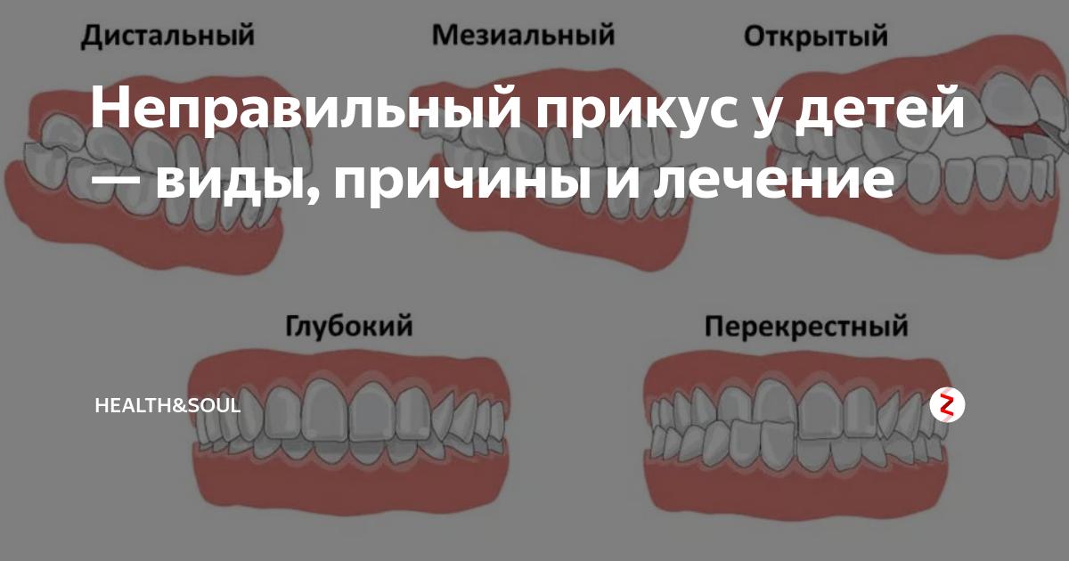 Осложнения ортодонтического лечения
