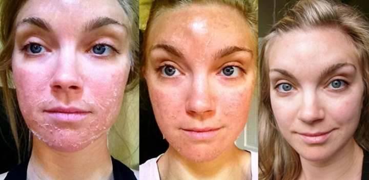 Уход за кожей лица после чистки – что нельзя делать
