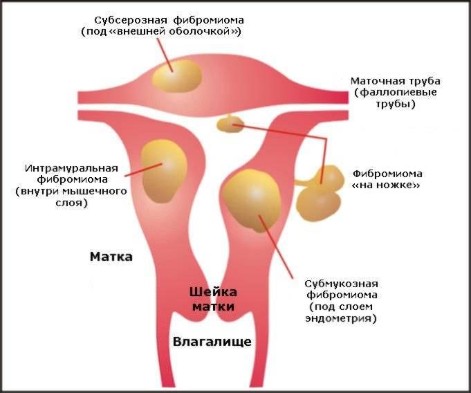 Причины возникновения и методики лечения фибромы матки