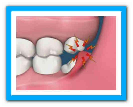 Что лучше? нужно ли удалять зуб мудрости или лечить проще: все за и против