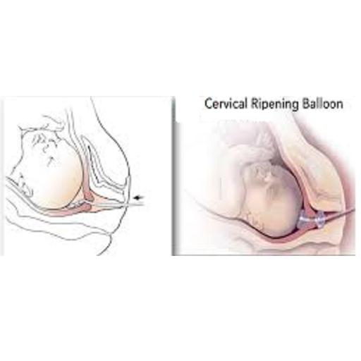 Использование геля для стимуляции родовой деятельности: как он действует, как скоро после введения начнутся роды?