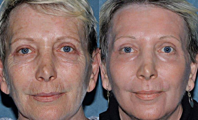Фракционное омоложение — что это такое, плюсы и минусы для кожи лица, отзывы