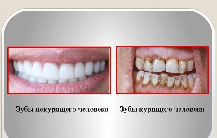 От курения может быть белый налет на языке