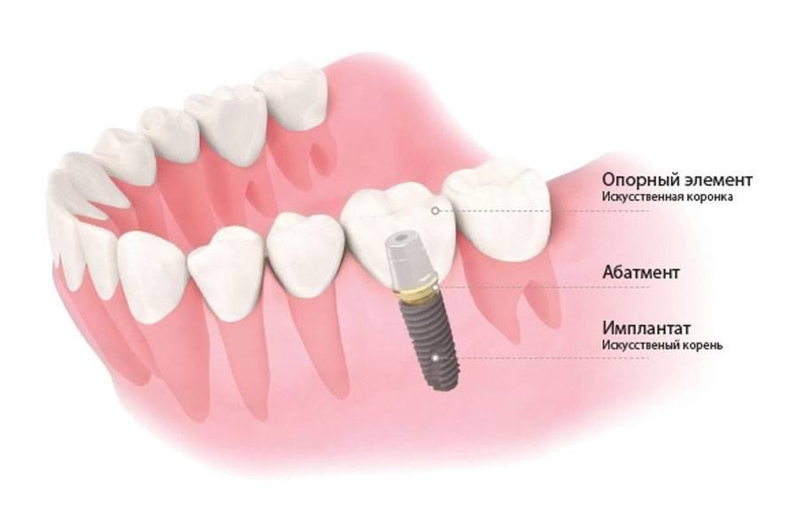 Имплант или имплантат как правильно называется