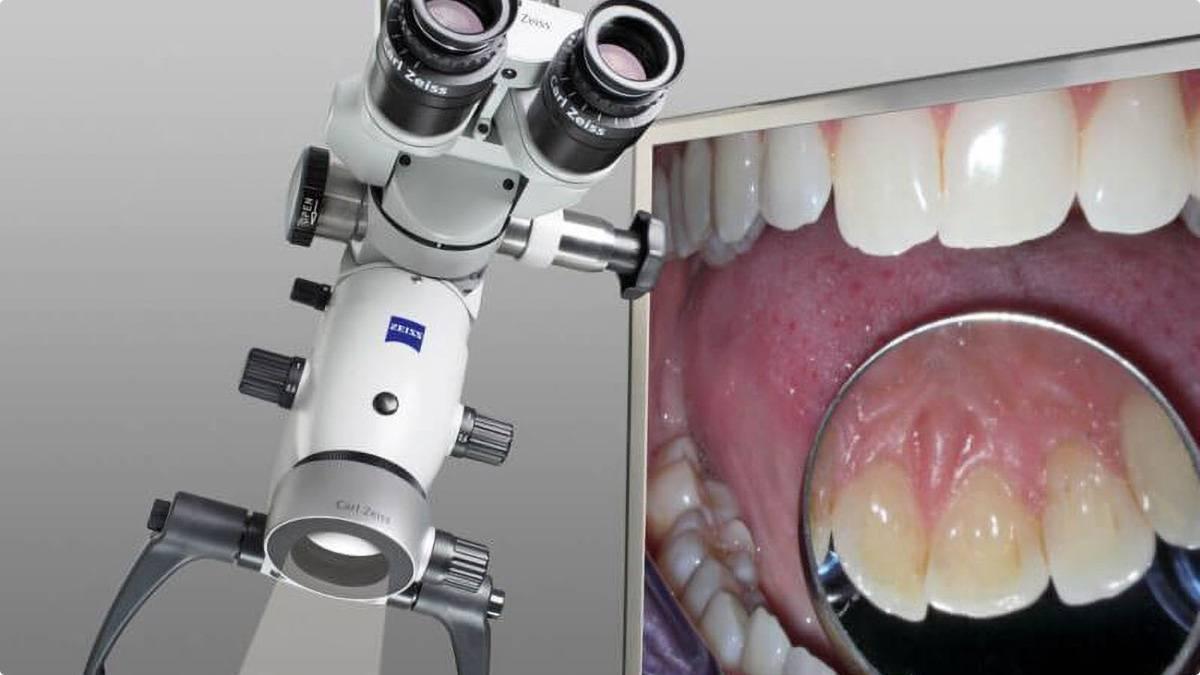 Лечение зубов под микроскопом – показания и преимущества лечения каналов под микроскопом