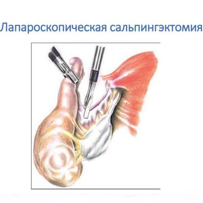 Плюсы и минусы операции по перевязке маточных труб для женщин