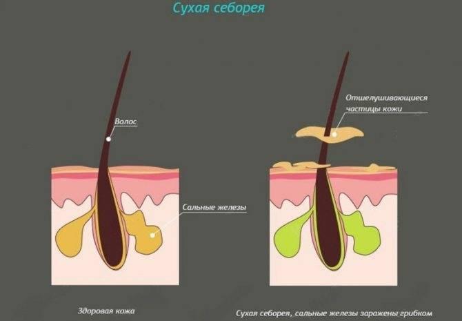 Жирная себорея лица: причины, симптомы и лечение