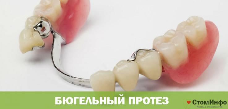 Виды бюгельных протезов и показания к установке конструкции на верхнюю челюсть