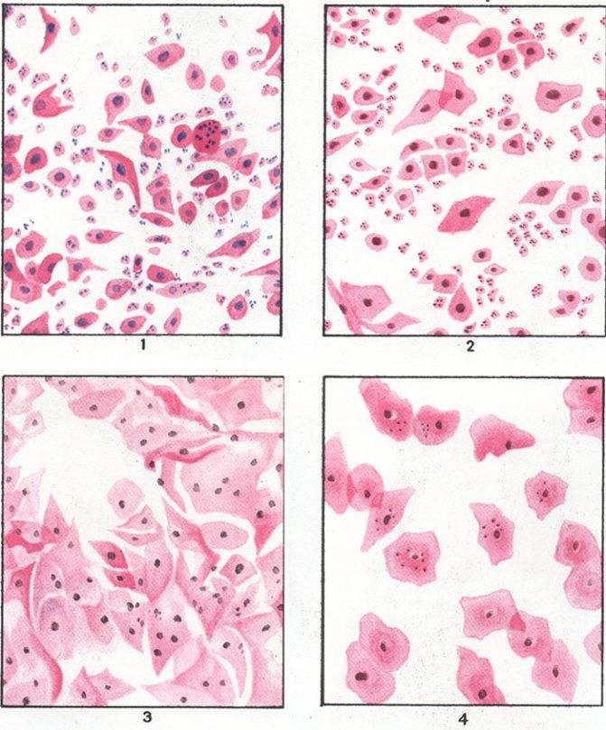 Эстрогенный тип мазка что это значит хорошо или плохо