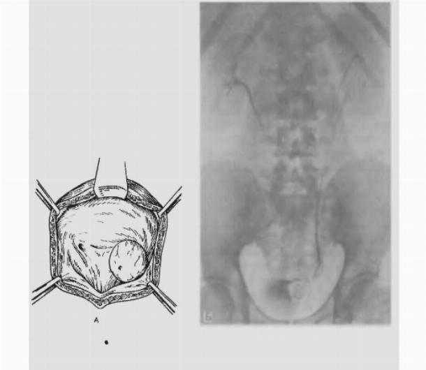 Пузырно-влагалищный свищ — аномальное сообщение между мочевым пузырем и влагалищем