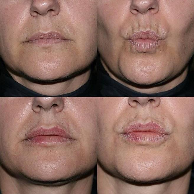 Как увеличить губы гиалуроновой кислотой: советы по контурной пластике от лучших экспертов