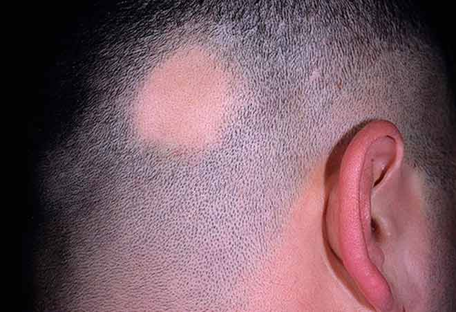Алопеция у женщин: причины выпадения волос, лечение облысения