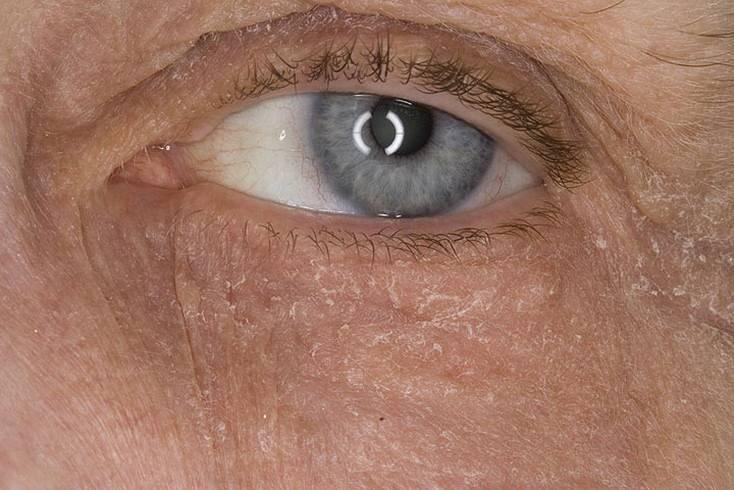 Шелушится кожа вокруг глаз: причины, симптомы заболеваний, лечение патологии