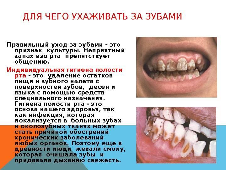 Воспалилась десна и запах изо рта. неприятный запах от десен: причины, сопутствующие симптомы и лечение