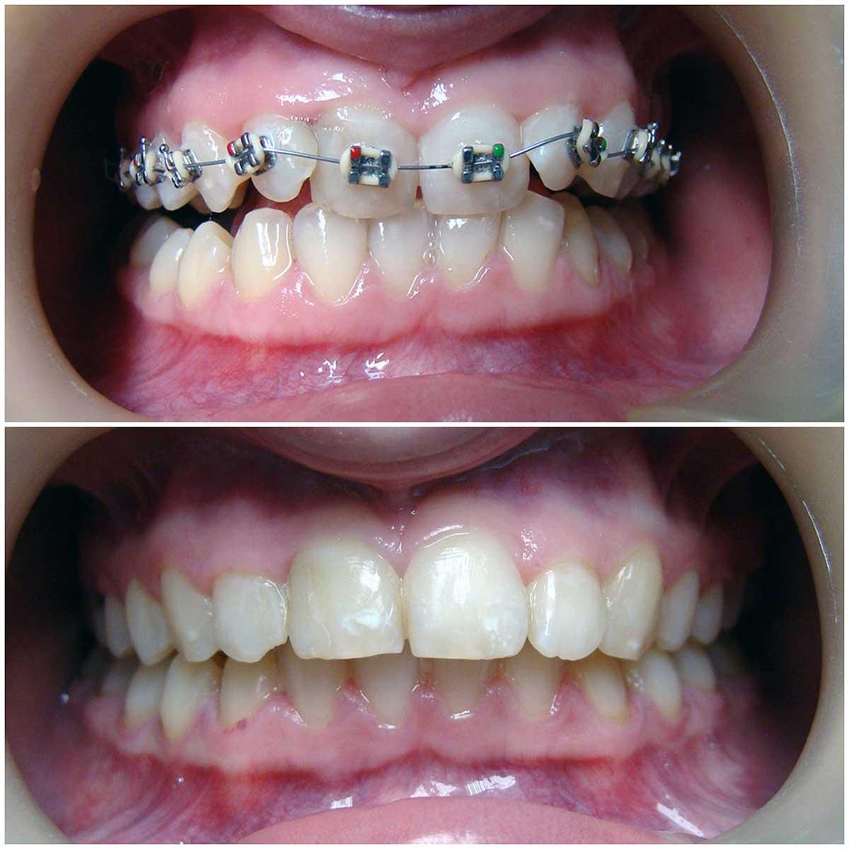 Выравнивание зубов в картинках