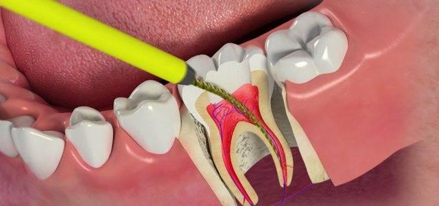Четвертый канал, или повторное эндодонтическое лечение моляра верхней челюсти