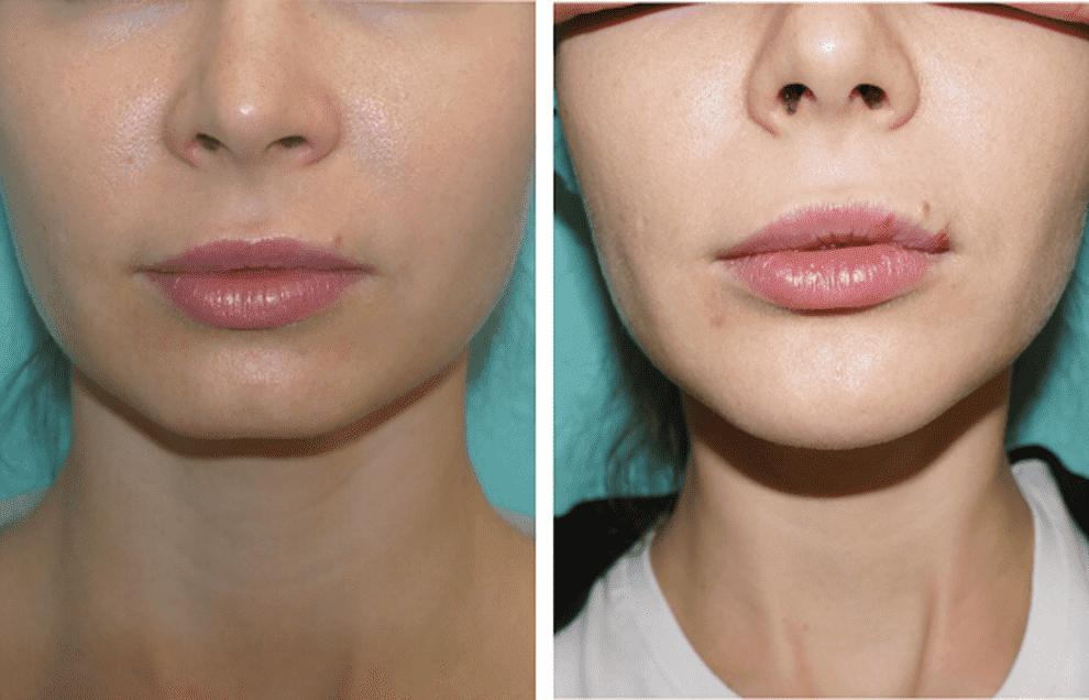 Филлеры для губ — все, что нужно знать для удачной коррекции