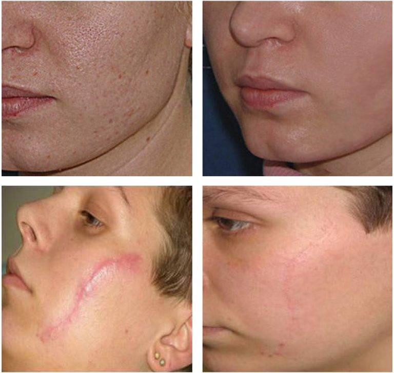 Озонотерапия отзывы волос: от выпадения…озонотерапия для волос! – от выпадения с отзывами и с фото до и после