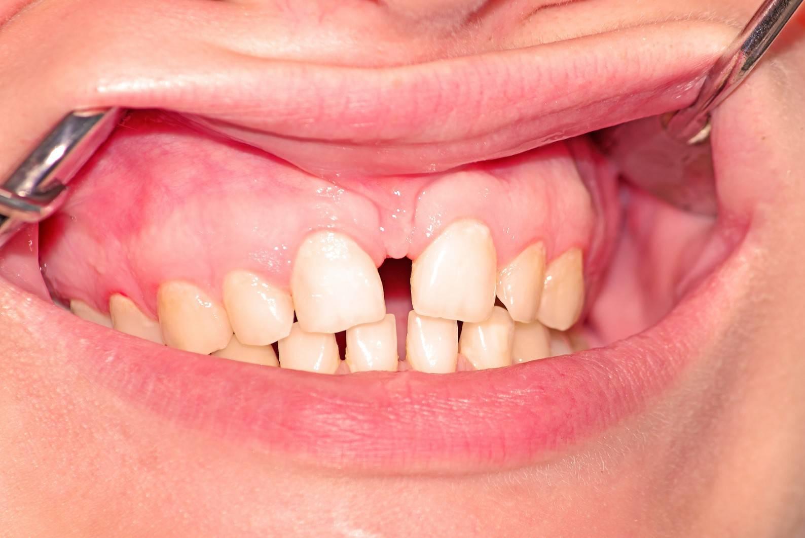 Подрезание уздечки под языком у детей: какими методами и в каком возрасте проводится