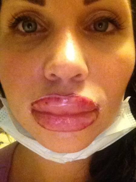 Сколько держится отек после увеличения губ