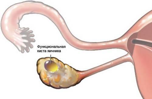 Причины появления и лечение кисты правого яичника