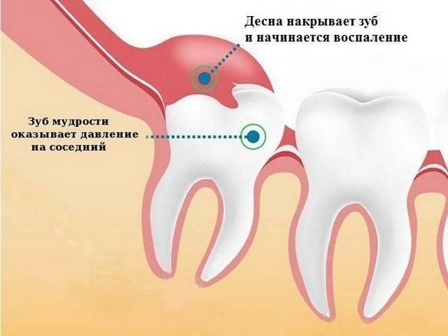 Режется зуб мудрости опухла щека