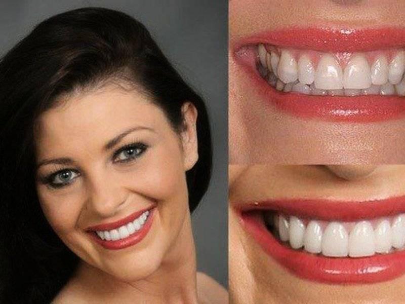 Особенности наращивания клыков в стоматологии: что нужно сделать, чтобы нарастить их в домашних условиях?