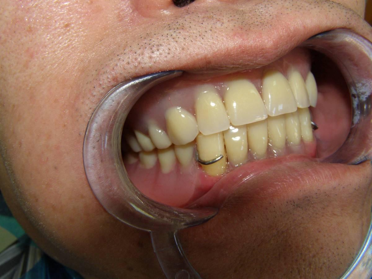 Можно ли протезировать зубы при пародонтозе, какие протезы и методы протезирования лучше?