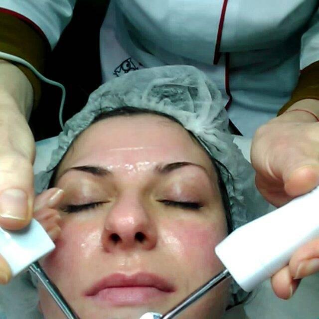 Пациенты и косметологи про дезинкрустацию кожи лица