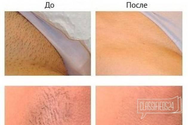 Как правильно брить ноги без раздражений