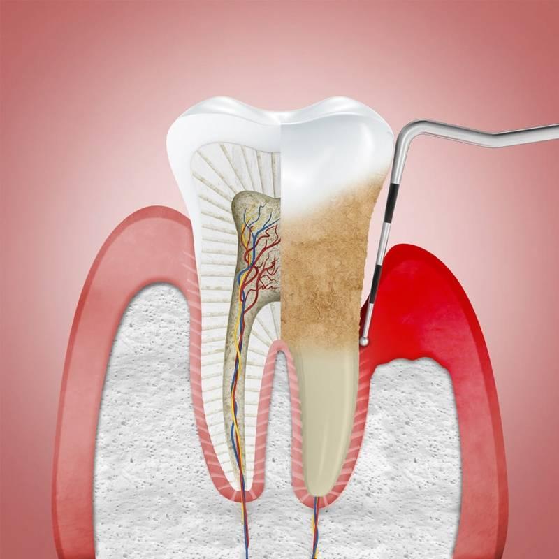 Стоматолог-пародонтолог
