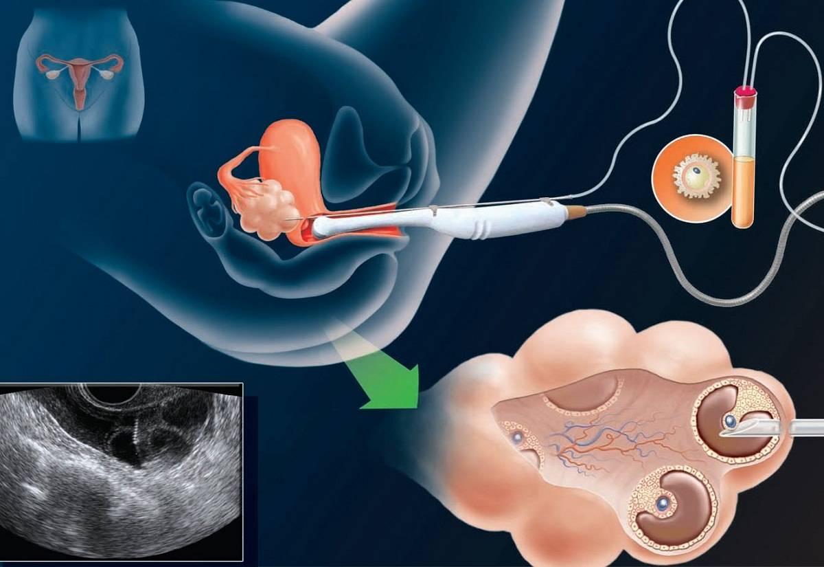 Вероятность зачатия с одним яичником