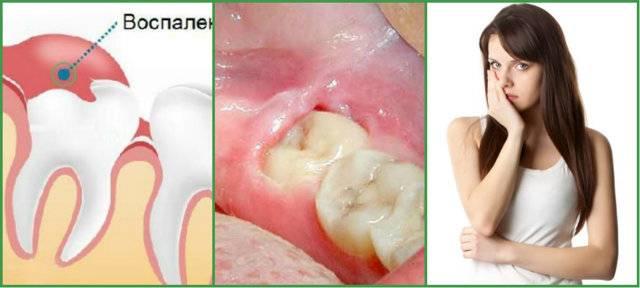 Болит зуб возле десны: возможные причины и особенности лечения