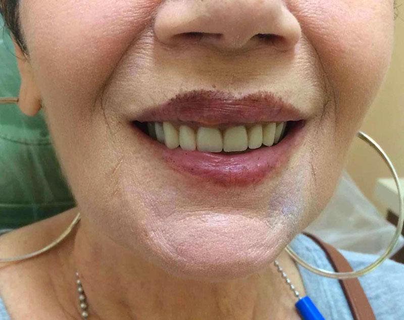 Аллергия на зубные импланты: причины, симптомы, лечение