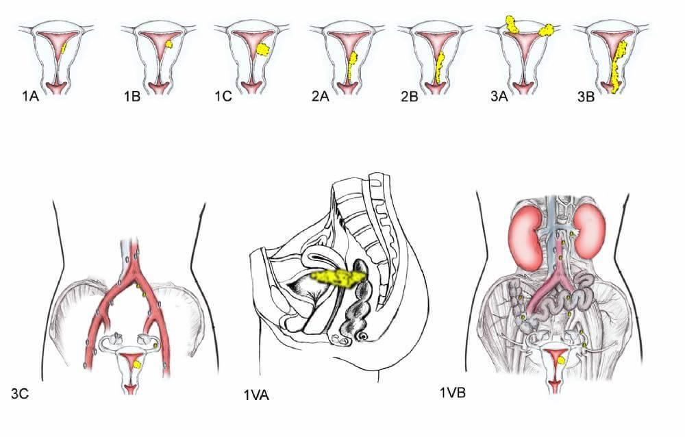 Рак матки: как распознать заболевание на ранней стадии, методы и эффективность лечения