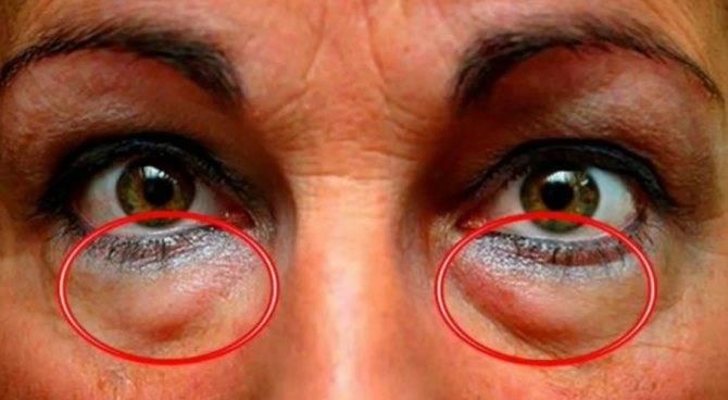 Параорбитальная грыжа под или над глазами: причины и лечение