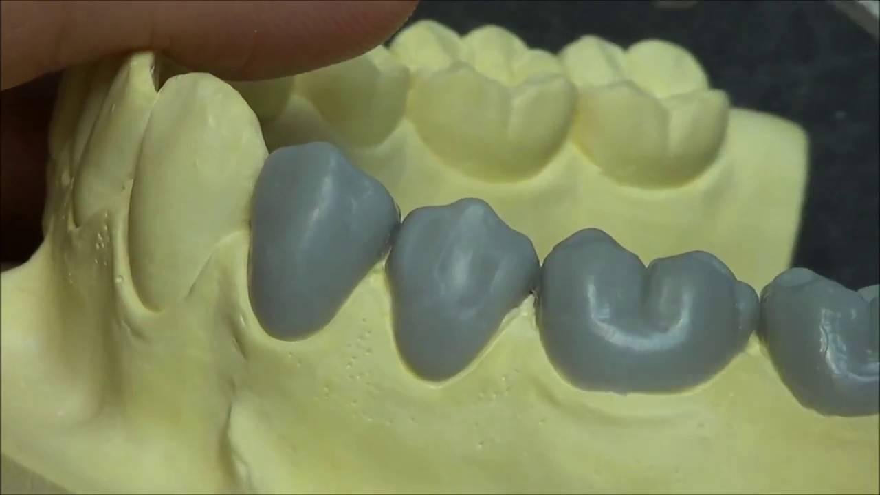 Моделирование воском формы коронок зубов на моделях