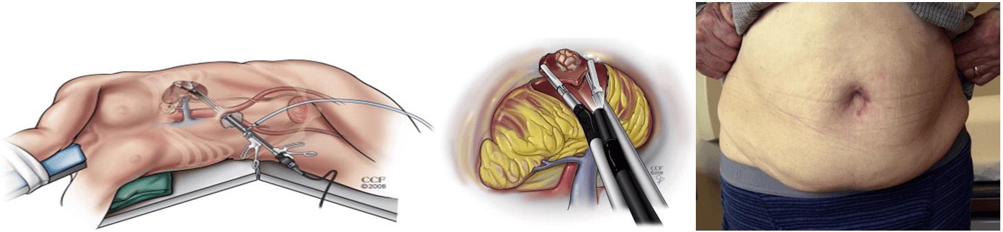 Восстановление после проведения мастэктомии