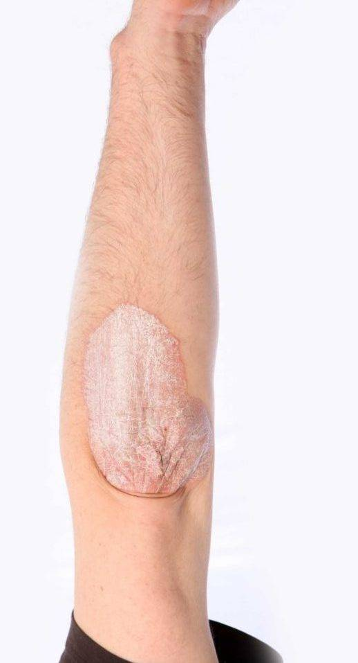 Почему шелушится кожа на локтях и чем лечить?