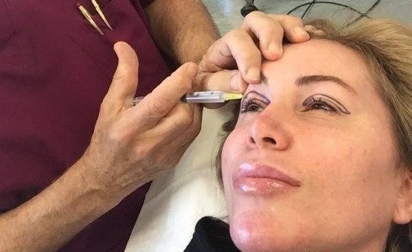 Препараты для мезотерапии дермахил: инновация в косметологии
