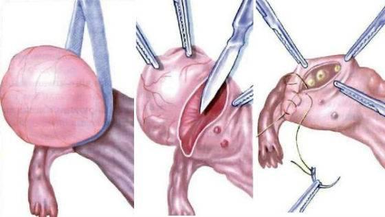 Причины и лечение многокамерной кисты яичника