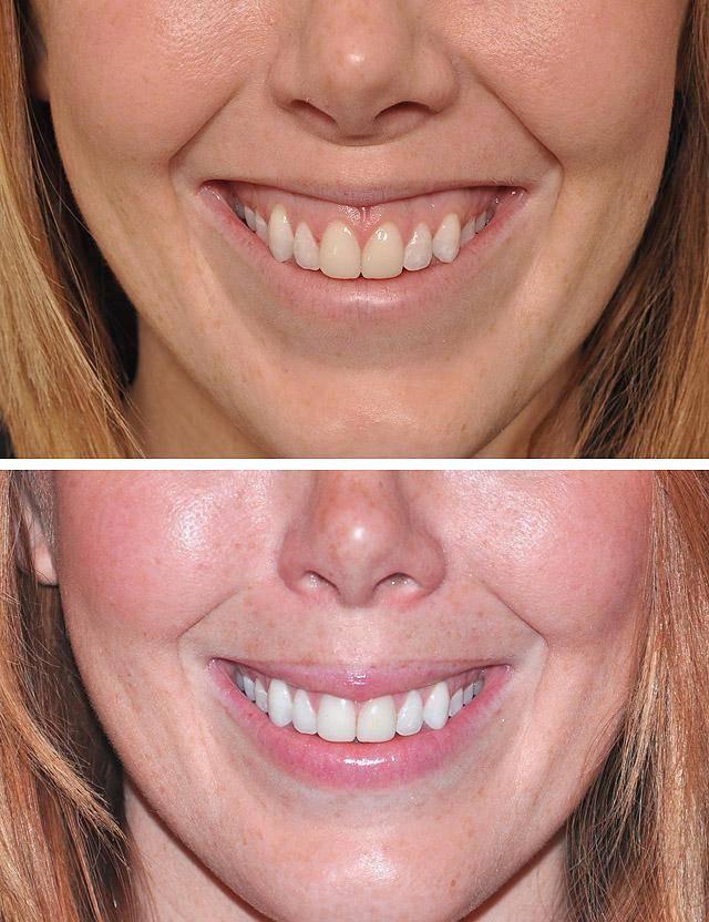 Инъекционная стоматология