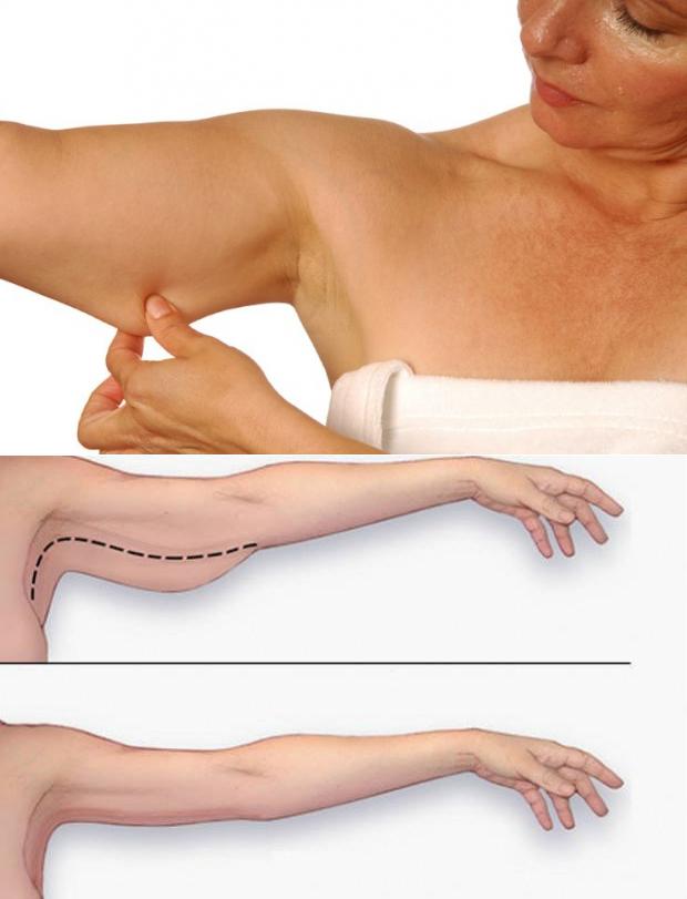 Как подтянуть кожу на руках