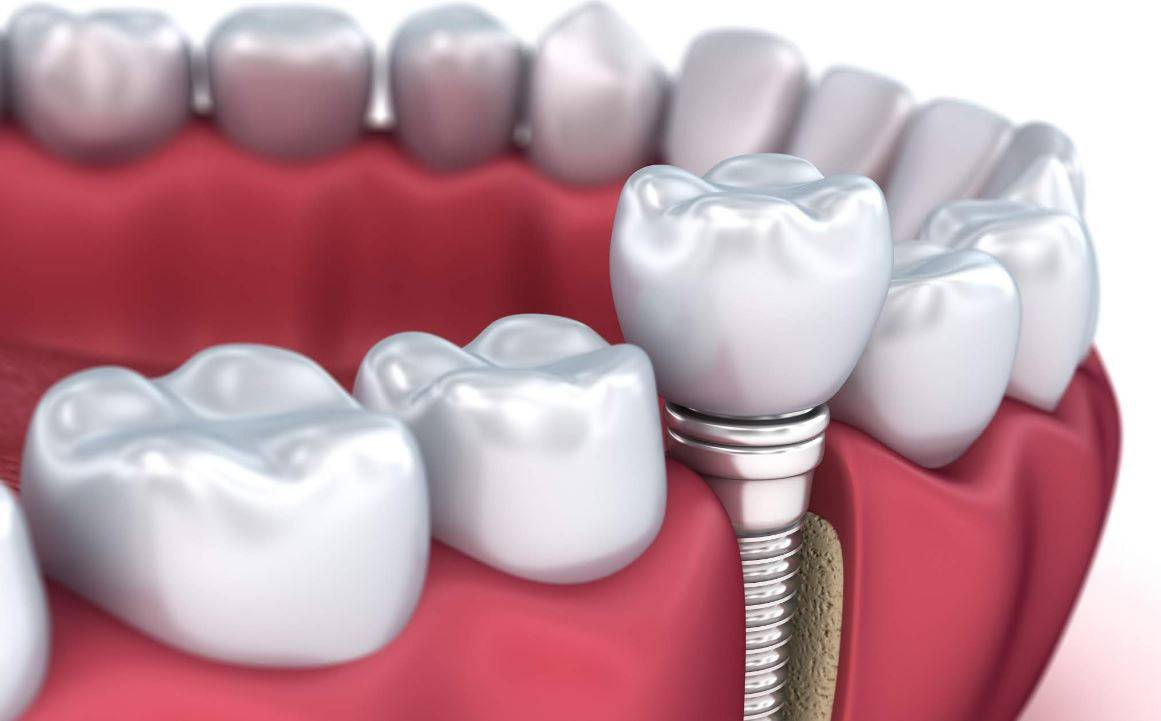 Вставить зубы: обзор всех методов восстановления зубов