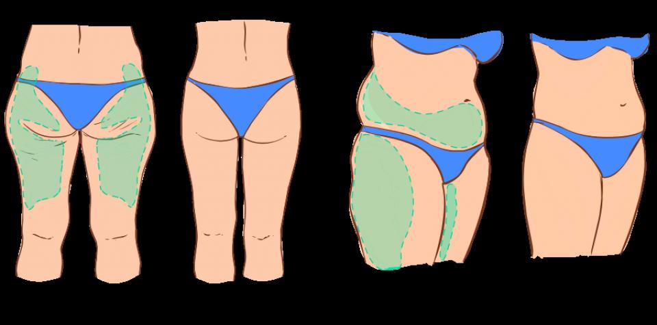 Торсопластика или путь к совершенному телу