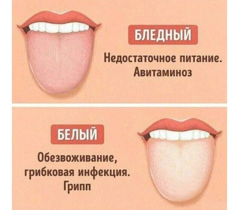 Почему появляется коричневый налет на языке?