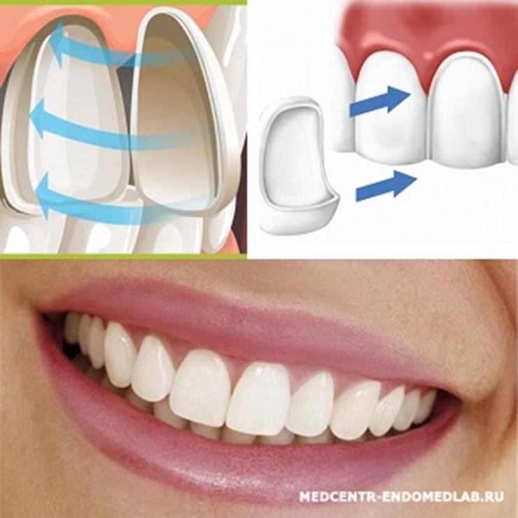 Люминиры на зубы: описание, фото «до и после», отзывы, плюсы и минусы