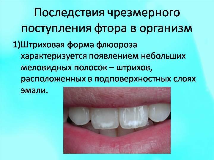 Вреден ли фтор для зубов