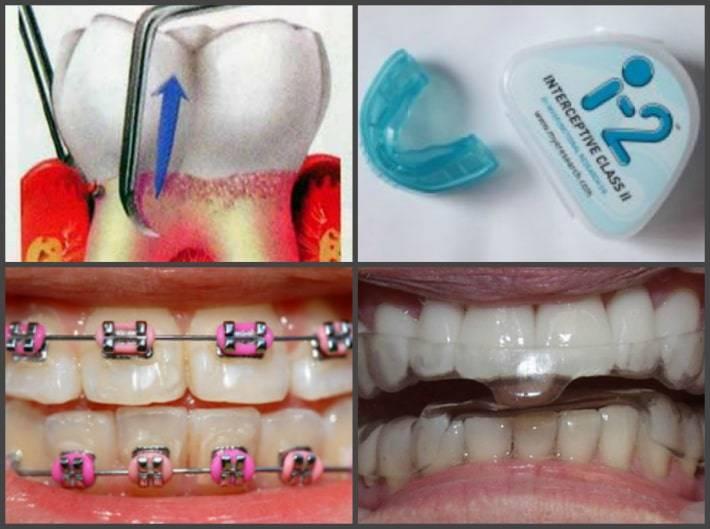 Шатается зуб — какие причины и что делать